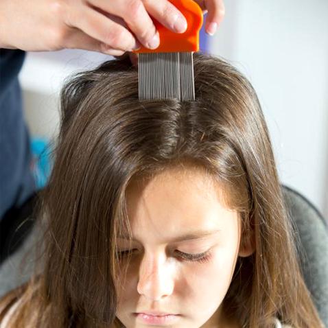 Remedio eficaz para eliminar piojos y liendres