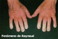 DE PDF SINDROME RAYNAUD