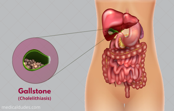 Gallstones: Types, cause, Symptoms and more in hindi
