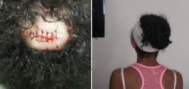 Rio Verde: Mulher é atingida com pedra ao passar perto de ex