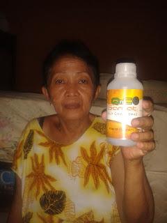 Obat Polip Hidung Di Apotik Kimia Farma