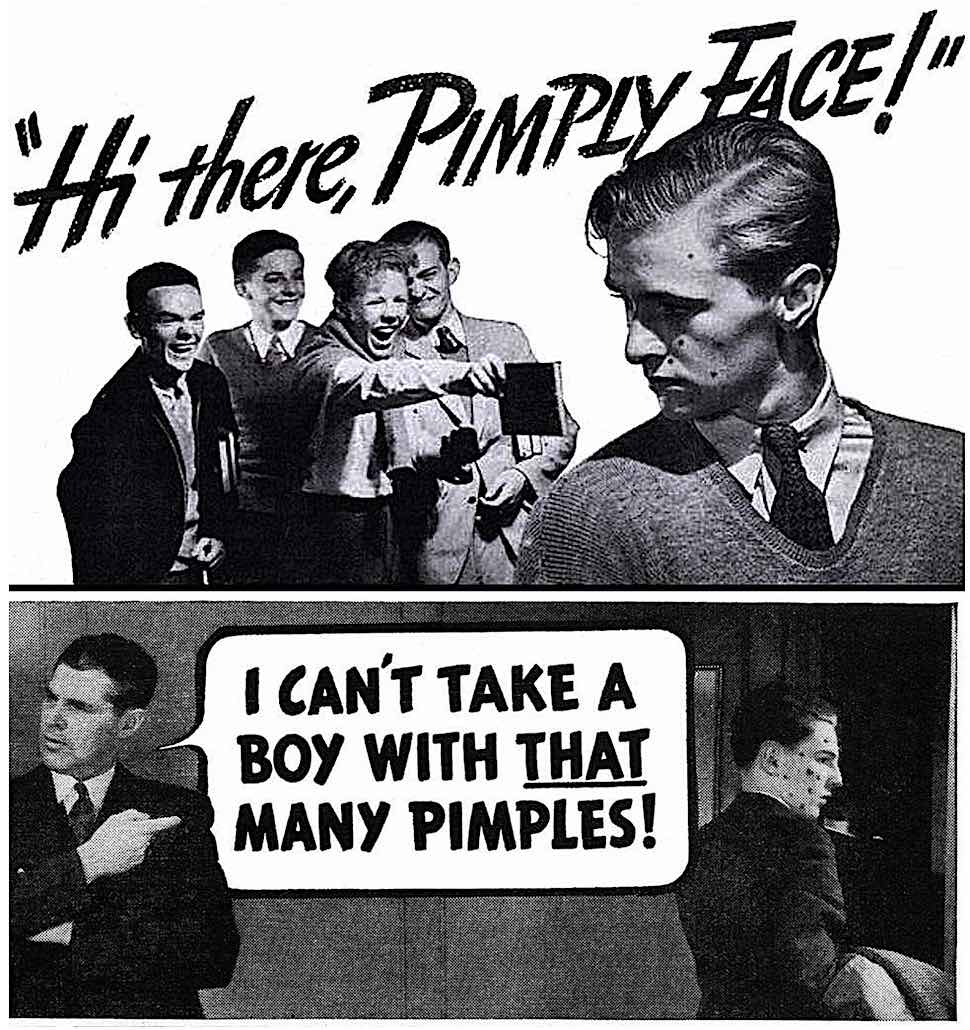 pimple advertisements 1930s, Hi there pimply face!