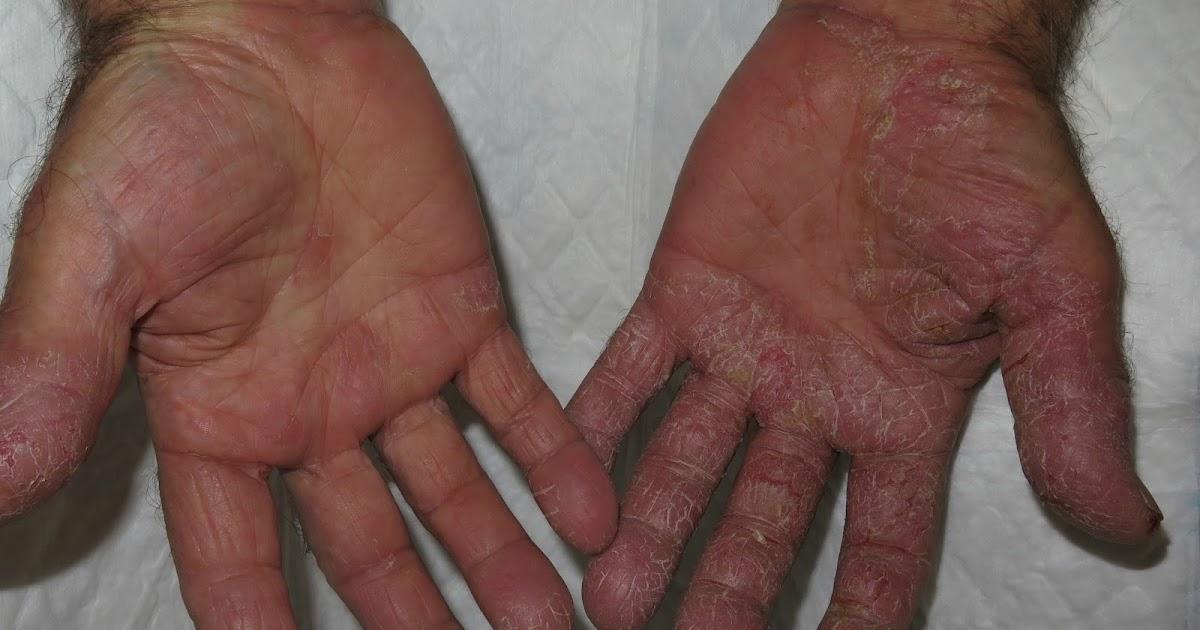 La foto atopicheskogo de la dermatitis a los niños de la edad lactante