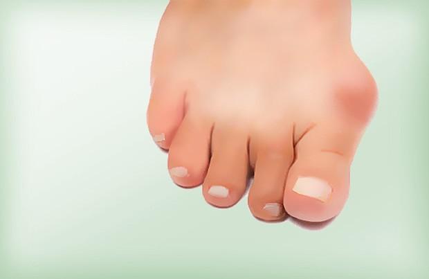 """O Hálux Valgus, ou como popularmente conhecido Joanete, é uma deformidade do """"dedão"""" do pé que afeta principalmente mulheres."""