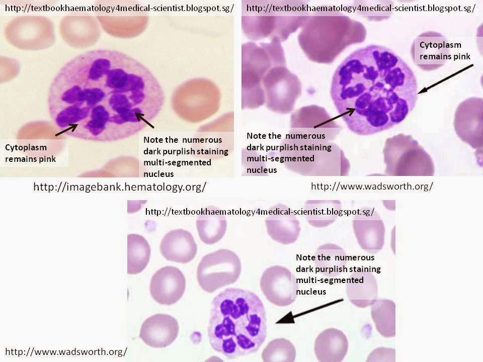 Haematology in a NutShell: Hypersegmented Neutrophils Vacuolization Of Neutrophils