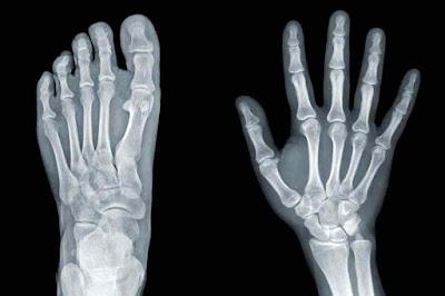 হাত এবং পায়ের এক্স-রে (X- Ray)