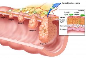 มะเร็งหลอดอาหาร อาการ