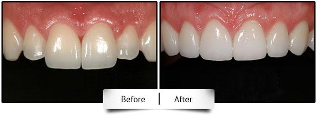 metal free all ceramic dental crown at Jamnagar
