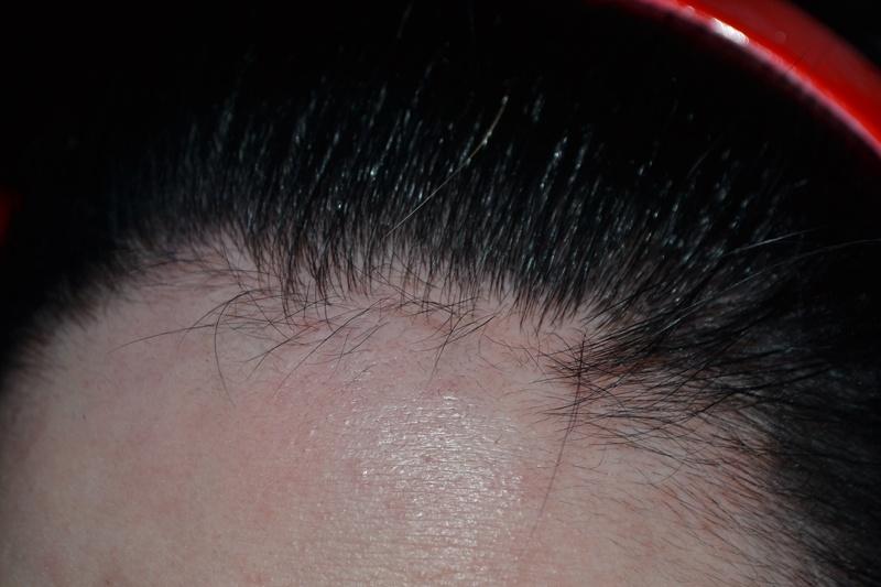 29 Elegant Haarfarbe Entfernen Auf Der Haut Frmbullcom