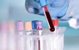 Kanker Darah, Gejala, Penyebab dan Pencegahan, kanker darah, cara mengobati kanker darah, kanker darah leukemia, limfoma, myeloma