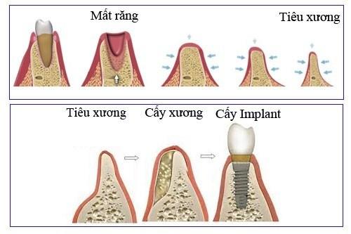 Cấy ghép Implant Nha Khoa phục hình răng mất -5