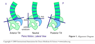 Anterior, neutral, and posterior tilt in the hips