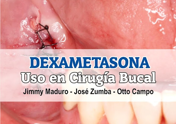PDF: Uso de la Dexametasona en Cirugía Bucal