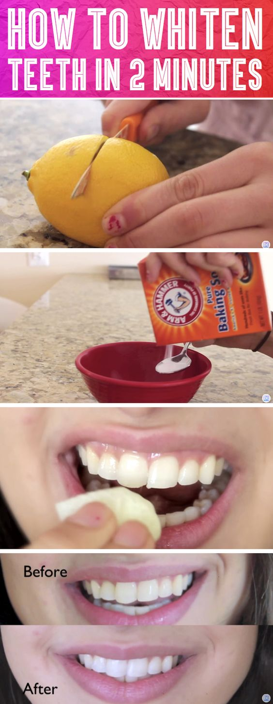 How To Whiten Her Teeth In 2 Minutes