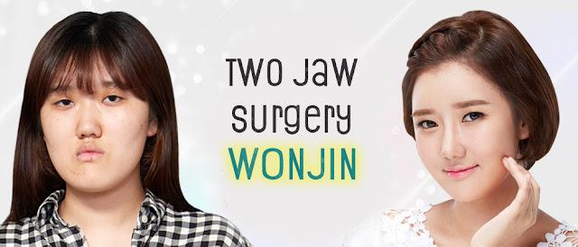 Korea Two Jaw Surgery Inspiring Story