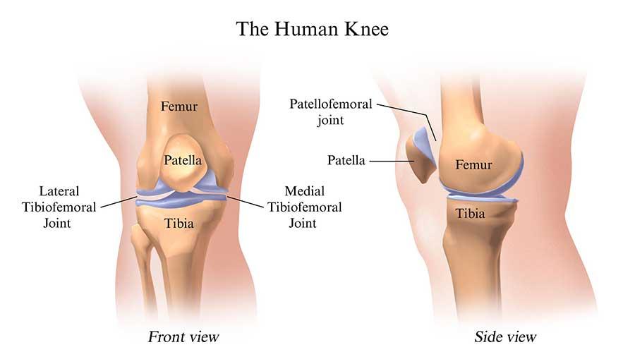 Penyakit Osteoarthritis, Penyebab dan Pencegahannya