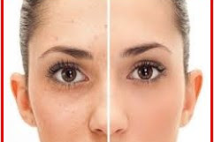 How to skin care to glow naturally