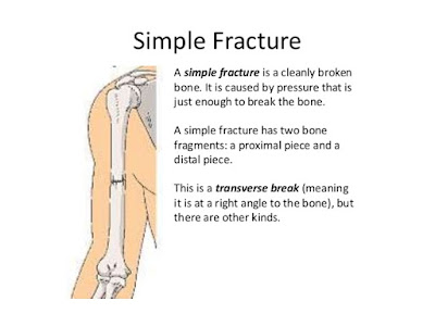 Fracture types,Simple fracture, fracture complications,Nursing care,Nursing Interventions