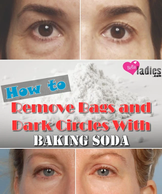 How to Remove Bags and Dark Circles With Baking Soda