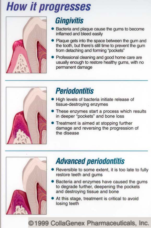 Daily Dentist What S That Word Dental Jargon From A To Z