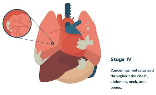 Prognosis of Stage 4 Mesothelioma