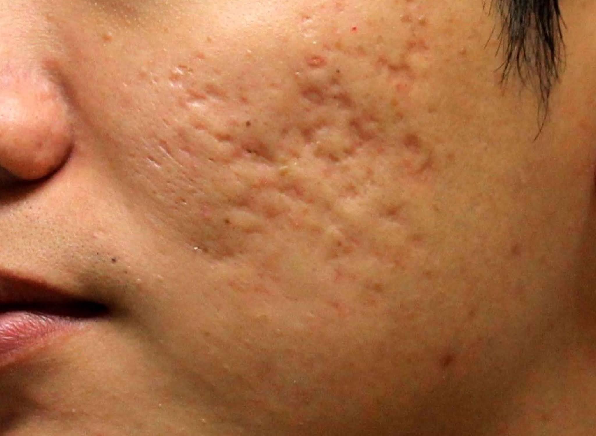 Đây là kết quả của việc nặn mụn không đúng cách, những vết sẹo teo sẽ tốn 1 khoảng thời gian khá dài để điều tr
