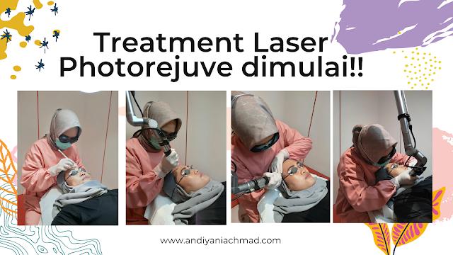 Treatment Laser Photorejuve