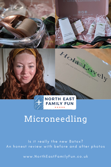 Microneedling -  An Honest Review with Before & After Photos