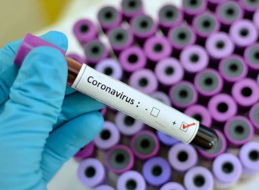 Coronavirus Kills Seven Nigerians In 24 Hours As Cases Continue to Rise #Arewapublisize