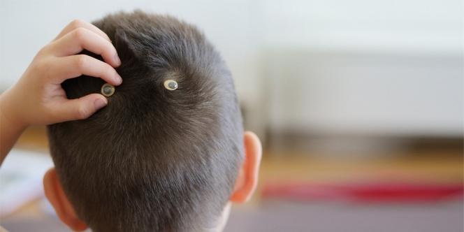 Mitos Uyeng-uyeng atau Pusar Kepala , Benarkah Menentukan Karakter Kepribadian Anak ?