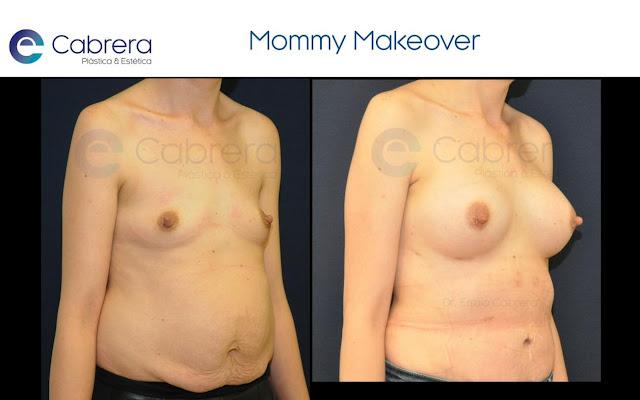 Caso de Mommy Makeover, cirugía plástica tras el embarazo