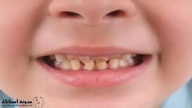 تسوس الأسنان/نخر الأسنان - الأعراض والأسباب.