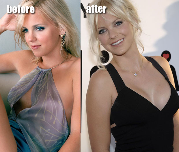 Anna Faris Black Hair Pussy - Anna Faris Plastic Surgery Before and After. Celebrity plastic surgery gone  wrong is like a fleshy train-wreck, but Anna Faris definitely got it right.