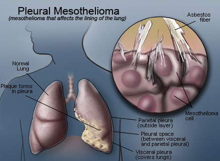 Mesothelioma Is A Malignant Cancer That Is Very Rare And Only Affects Certain People This Cancer Develops In Cells Cells Meshothelium While Meshothelium