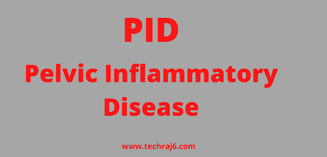 PID full form, What is the full form of PID