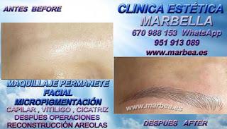 MICROPIGMENTACIÓN EN VALENCIA MICROPIGMENTACIÓN MARBELLA CLÍNICA ESTÉTICA los mejores especialistas en maquillaje permanente en Valencia