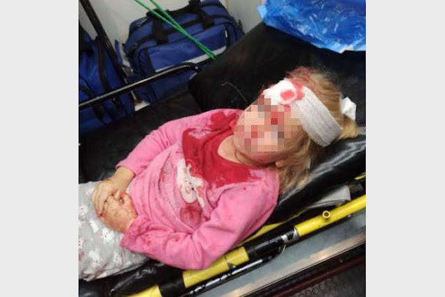 «Мама, на нас напали бандиты?» В Гродно во время акции протеста пострадал пятилетний ребенок