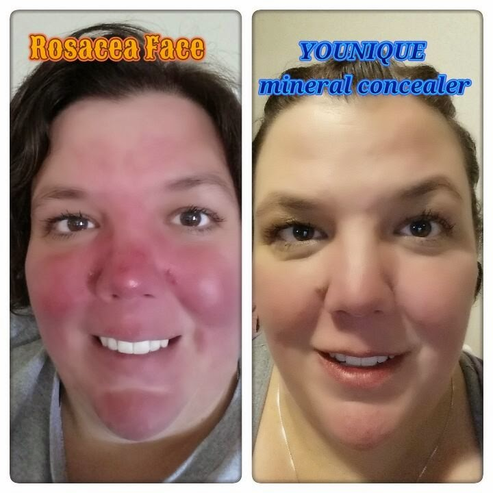 Beautifully Younique: Attention LADIES Struggling with ROSACEA: