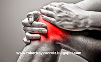 Rheumatoid arthritis treatment