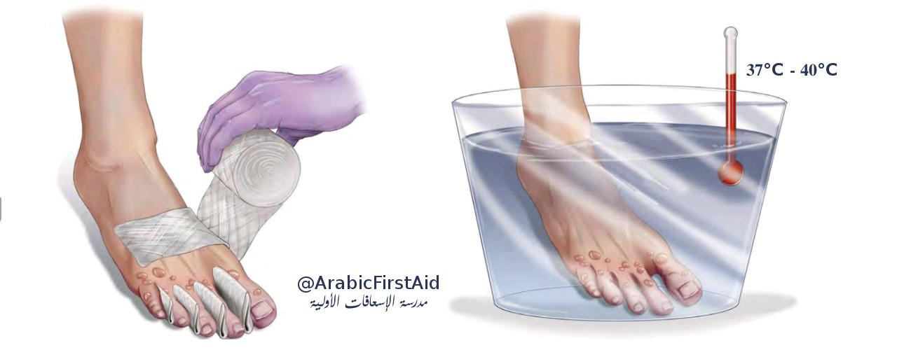 First-Aid-Treat-Frostbite-عضة-الثلج-قضمة-الصقيع