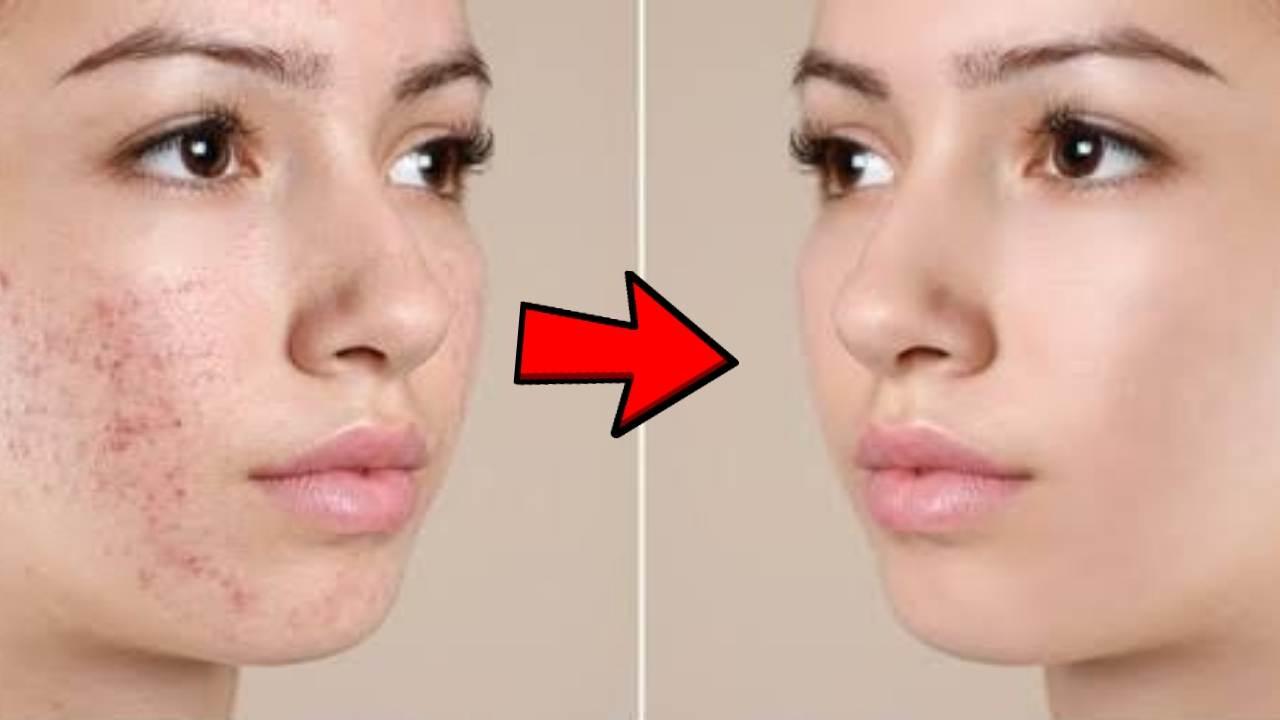 pimples, acne