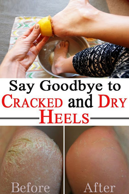 Say Goodbye to Cracked and Dry Heels