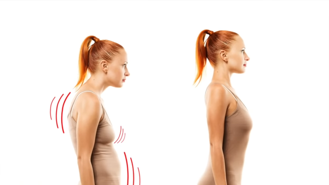 How to get rid of Neck Hump also known as Buffalo hump, Dowager's Hump?