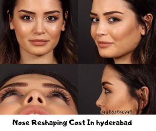 Nose reshaping cost in hyderabad