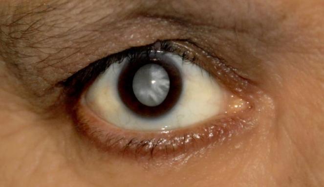 Macam-Macam Penyakit Mata dan Cara Mengatasinya