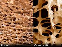 Alternative medicine for osteoporosis