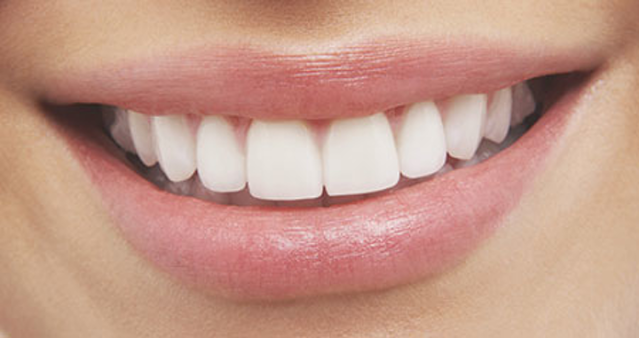 white teeth with coconut oil