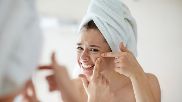 5 Natural Remedies for relieving Acne