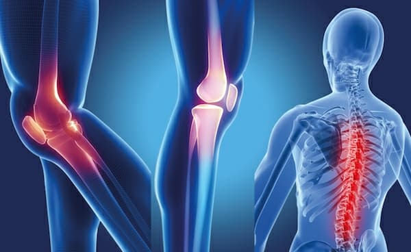 Do You Know These Facts About Hip Arthritis
