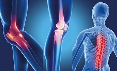 About Common Foods That Can Cause Inflammation And Joint Pain